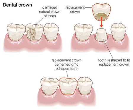 Dental Crowns | Porcelain Crowns Warrensburg MO | Oak Grove | Windsor