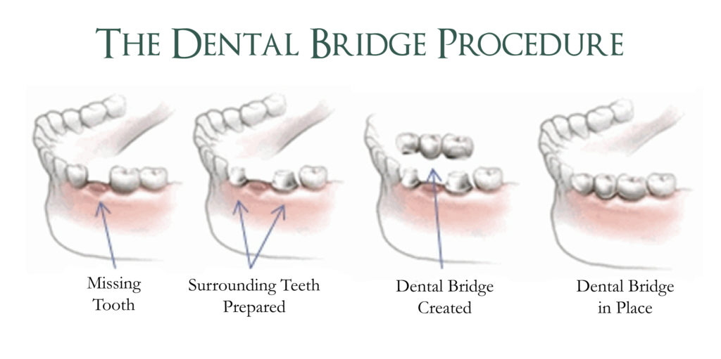 Dental Bridge Procedure | Replace Missing Teeth Warrensburg MO | Oak Grove | Windsor