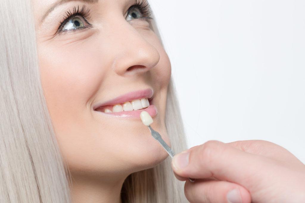 Dental Crown | Ridgeview Family Dental MO