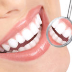 Preventive Dentistry | Warrensburg | Oak Grove | Windsor