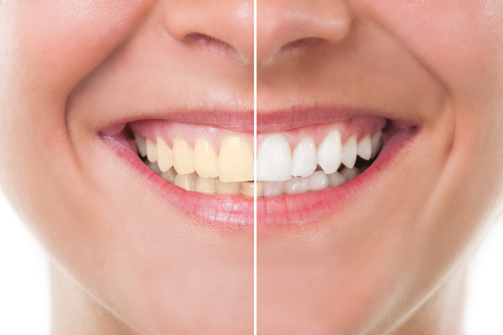 Teeth Whitening | Warrensburg MO