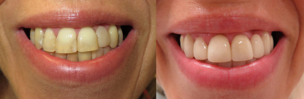 Porcelain Crowns Before & After Warrensburg MO